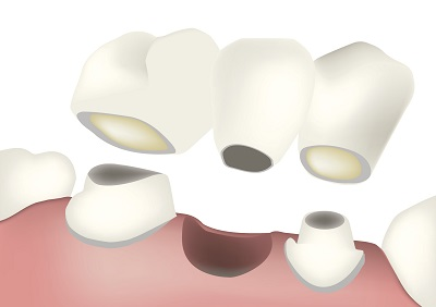 Diagram of a dental bridge from dentist office in Scappoose, OR.