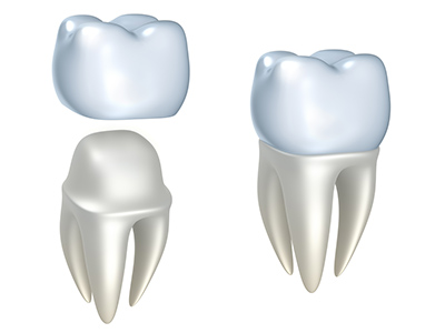 Dental Crowns by dentist in Scappoose, OR.